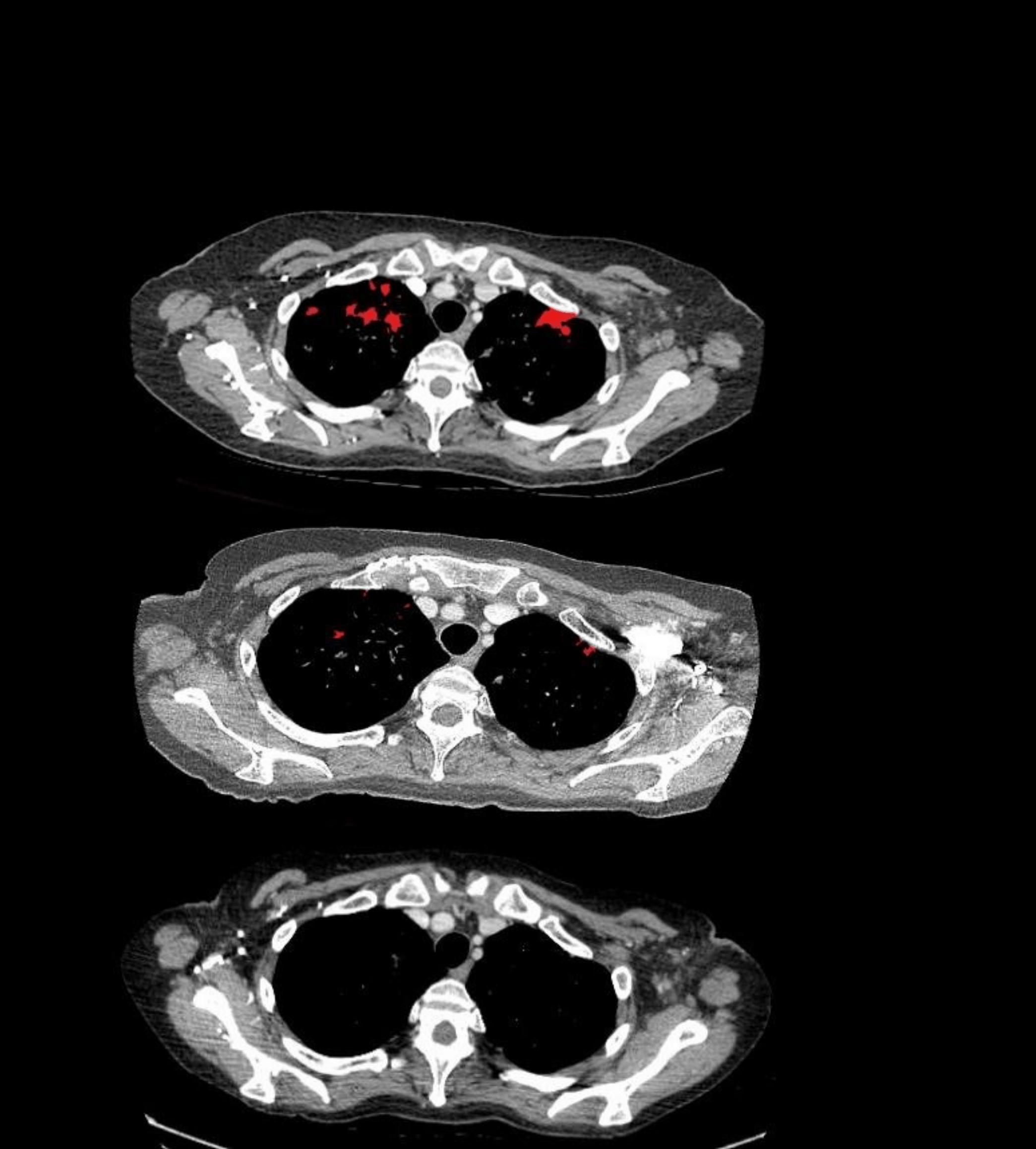 4. Zabinostat CT Scan